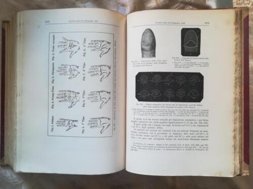"""Tavole sul tema: """"Caratteri fisici dei delinquenti"""". La prima tavola rappresenta """"i differenti solchi palmari nelle scimmie  e le diverse anomalie nell' uomo."""""""