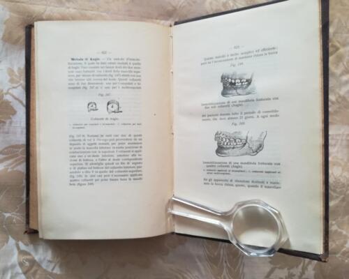"""Figure 247, 248 e 249.Illustrazione di apparecchi chiamati """"collaretti di Angie"""" e messa a punto in una mandibola fratturata di due e quattro collaretti."""